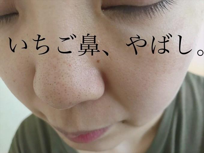 いちご鼻の悩み